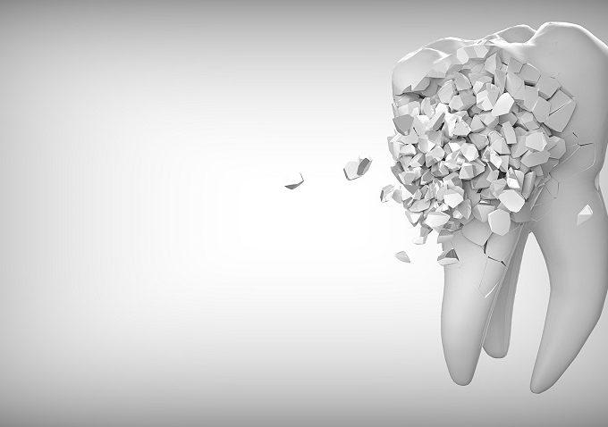 zobna-protetika-zob